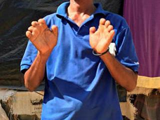 Machete to the head, fingers chopped, tale of a Rohingya refugee