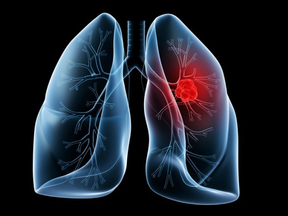 Health disparity for blacks exists within lung screening guidelines