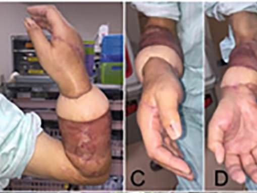 Man, 67, has his arm RESEWN after he accidentally cut it off while operating heavy machinery