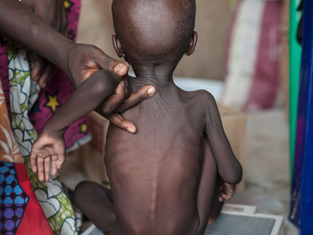 7 Forgotten World Crises Urgently Need Your Support