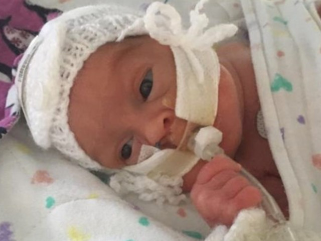 Bereaved Grandparents Want To Help More Parents Get The Chance To Change Their Premature Baby's Nappy