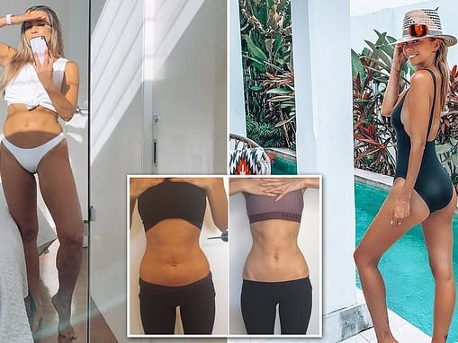 The 'natural' body shaping treatment used by Aussie reality stars and models