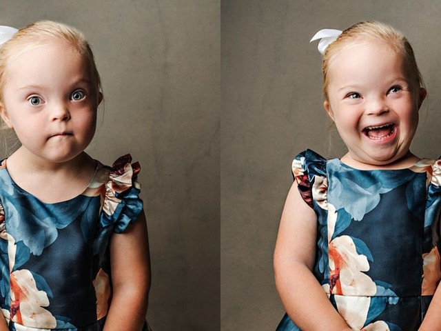 This photo series is challenging the stereotypes of people with Down syndrome