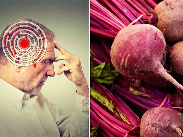 Beets May Help Prevent Alzheimer's Disease