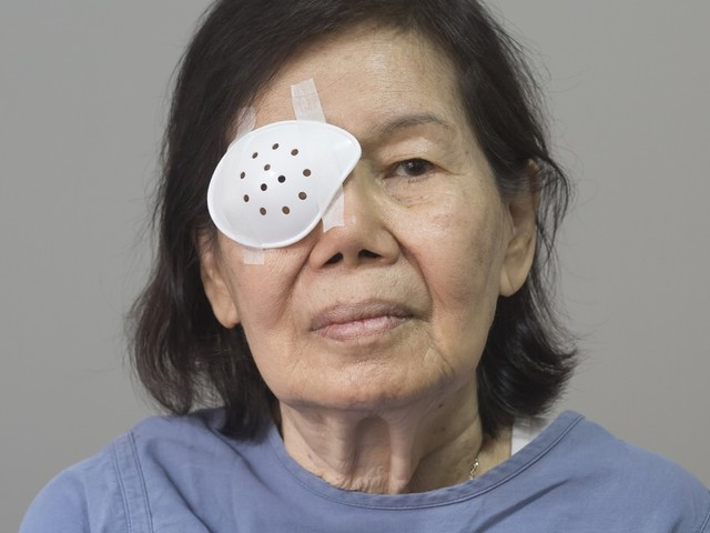 Cataract Surgery to See Better Might Help You Live Longer