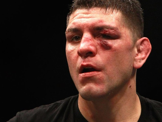 Report: Nick Diaz arrested on alleged domestic violence charges