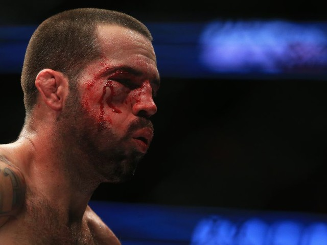 Matt Brown: Fight with Carlos Condit 'would make me want to come out of semi-retirement'