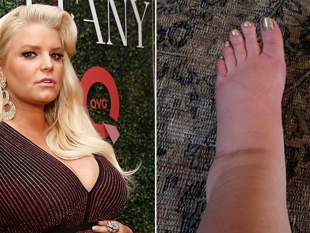 Jessica Simpson Seeks Help on Social Media for Swollen Ankle