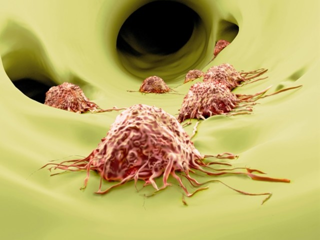 Faster, cheaper test has potential to enhance prostate cancer evaluation
