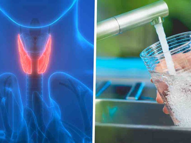 Thyroid Deficiency Linked to Iodine Deficiency and Fluoridated Water