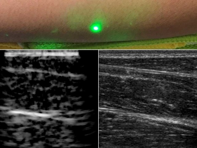 First laser ultrasound images of humans produced