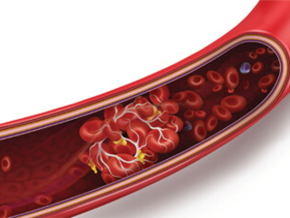 Can You Get Social Security Disability for Blood Clots?