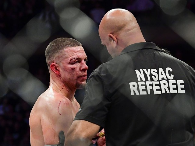 White shuts down Masvidal-Diaz rematch, agrees with stoppage