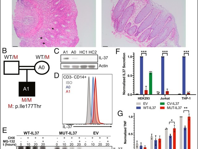 Homozygous IL37 mutation associated with infantile inflammatory bowel disease [Immunology and Inflammation]