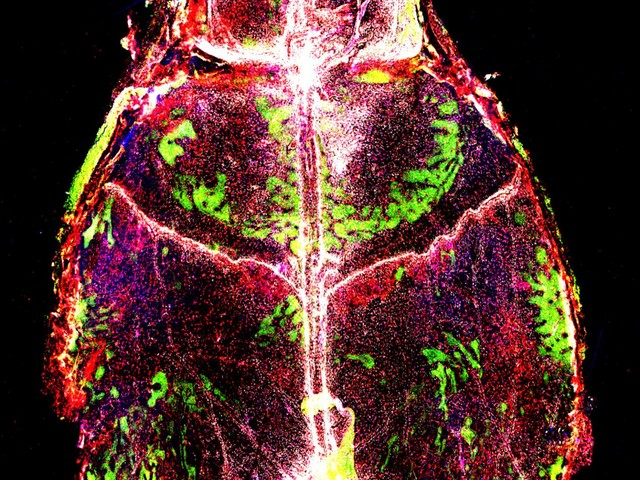 Meningitis changes immune cell makeup in the mouse brain lining