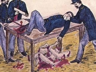 Hacksawing The Economy: How Lockdowns Are In The Tradition Of Civil War Surgeons