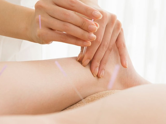 Acupuncture can be helpful for heel pain