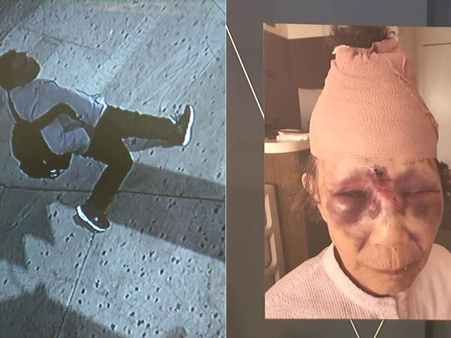 Man arrested on suspicion of violently beating grandmother in Koreatown