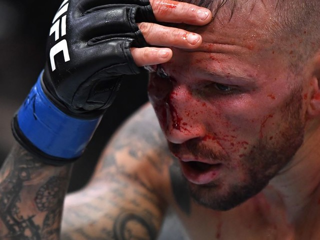 Dillashaw admits lying to referee during Sandhagen fight