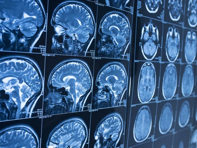 Medical News Today: New approach may save brain cells in neurodegenerative diseases