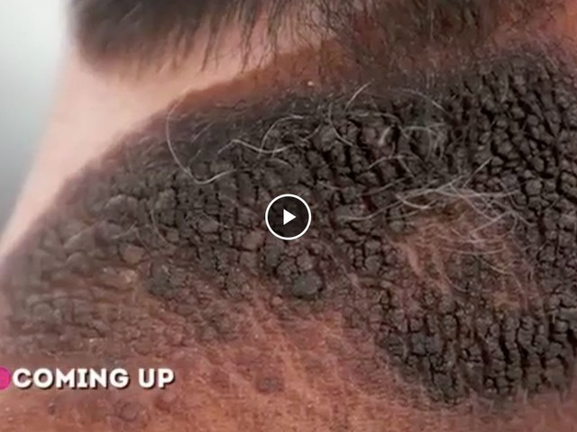 Dr. Pimple Popper Takes On A Huge & Hairy Birthmark In Episode 2