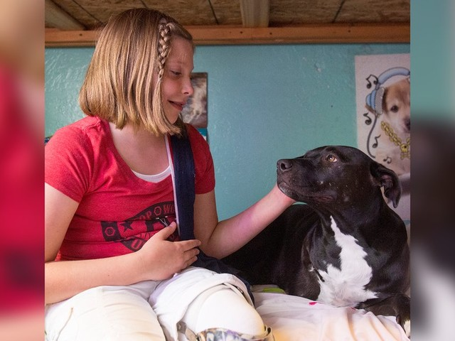Girl Who Lost Her Leg Felt Alone — Until She Found A Friend Who Understood