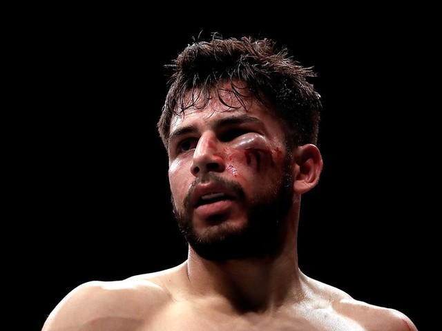 Rodriguez: 'I know how it feels to have an eye closed and I still can fight'
