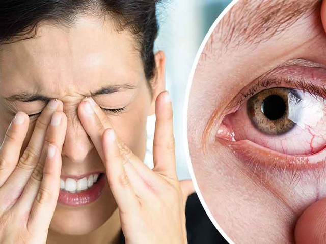 Natural Remedies for the Prevention of Dry Eyes