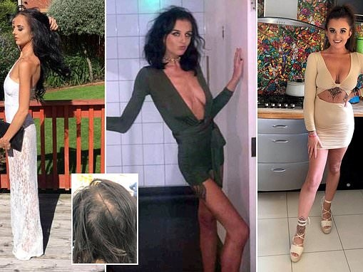 Chloe Frame, anorexic student who dropped to six stone turns her life around