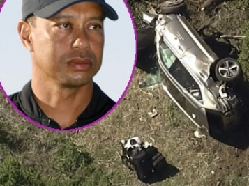 Tiger Woods Undergoes Surgery For 'Multiple Leg Injuries' After Single-Car Rollover Accident
