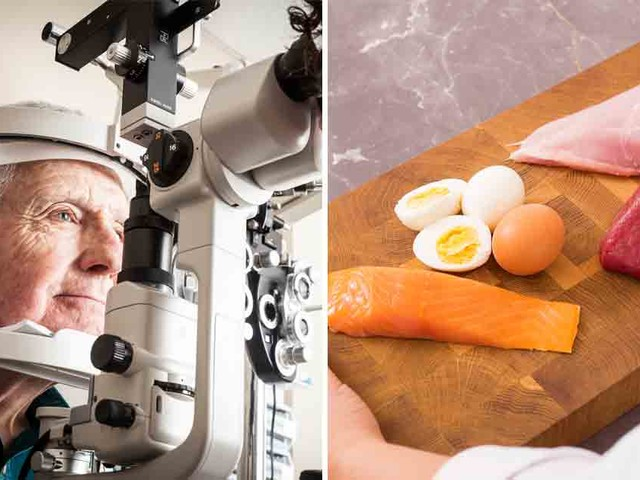 Ancestral diet can prevent macular degeneration