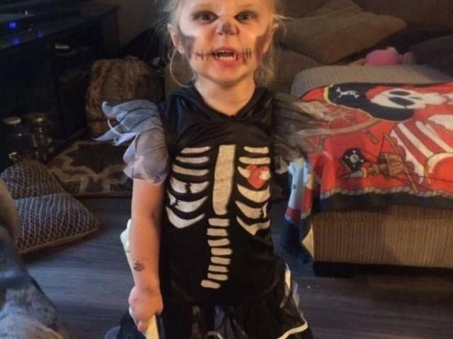Amputee Preschooler is Ready for Halloween