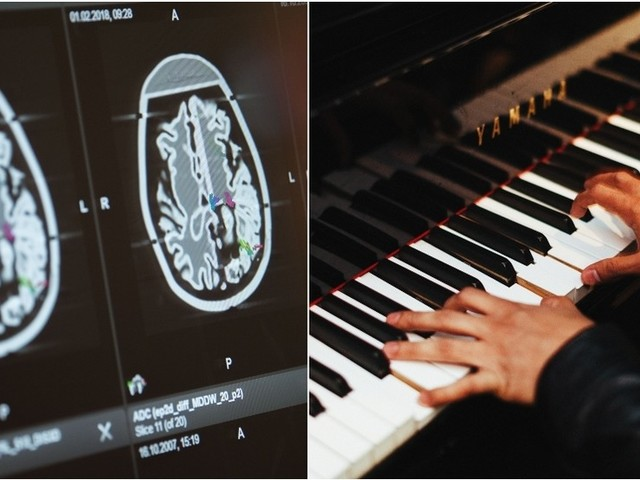 Jazz on my mind: Italian musician played piano while surgeons operated on his brain