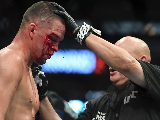 Doctor says he received online threats after UFC 244 stoppage