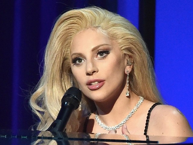 Lady Gaga Has Full Body X-Ray After Falling Off Stage With Fan