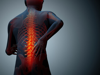 Can You Get Social Security Benefits for Degenerative Disc Disease?
