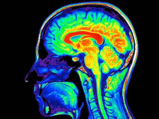 This Is Your Brain on Drugs (Really)