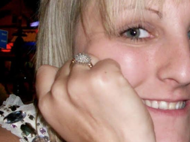 Woman Dies Just Weeks After Contracting Mystery Infection, Where 'Yellow Eyes' Were Only Symptom