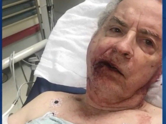 Attacker reportedly sucker punches 76-year-old disabled man over parking spot — and he's still on the loose
