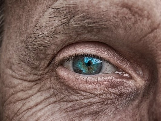 Study links cataracts to higher risk for death from heart disease