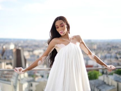 Soon You'll Be Able To Get Makeup Products From Winnie Harlow Via A Collaboration With KKW Beauty