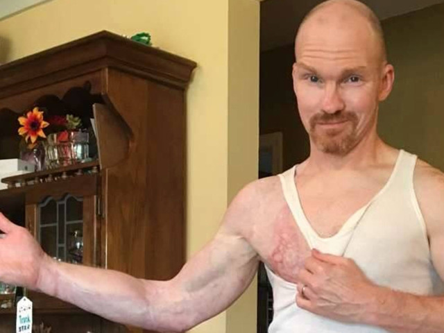 Man's arm eaten alive by aggressive bug that's like 'forest fire burning your skin'