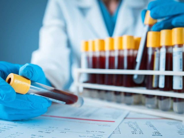 Medical News Today: New blood test detects brain tumors with 87% accuracy