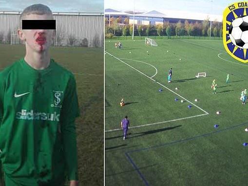 Children's football match turns into 20-strong mass brawl