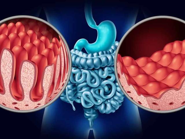 An introduction to celiac disease