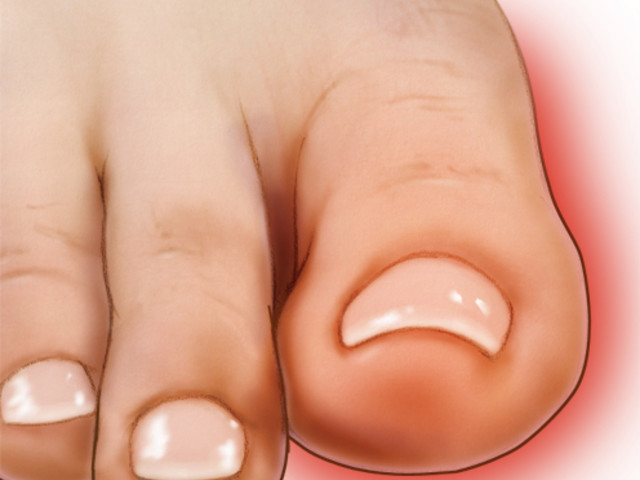 Big Toe Pain — What You Need to Know