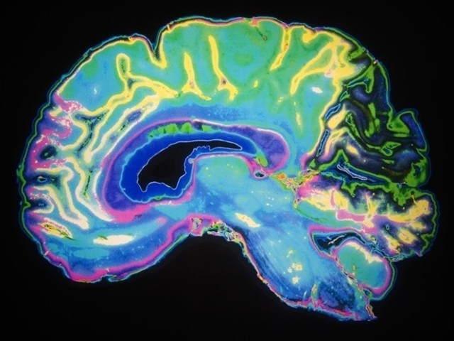 Study provides new understanding of how the brain recovers from damage caused by stroke
