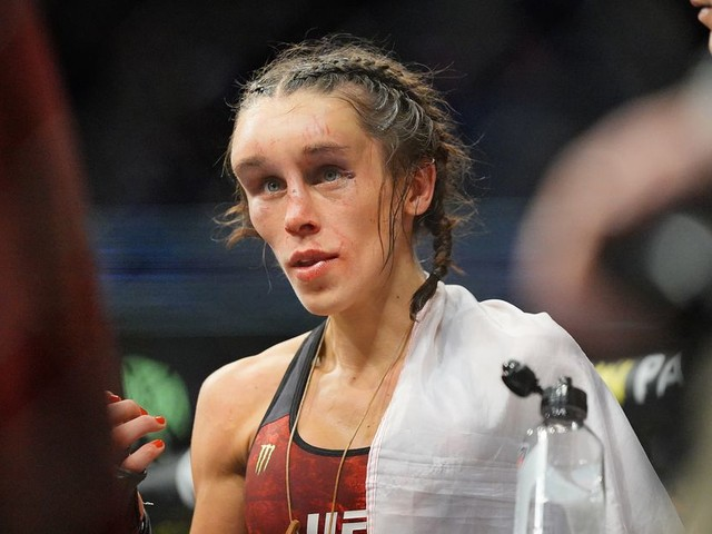 'I'm good!': Jedrzejczyk gives update on UFC 248 injury