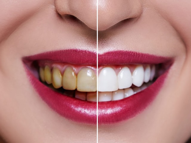 Get Everything Clear Prior To Acquiring Dental Veneers