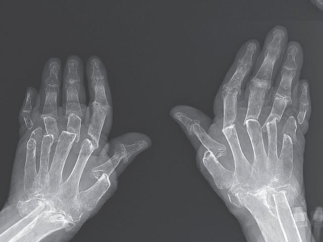 Woman's Bones Shrank in Rare Case of 'Telescoping Fingers'